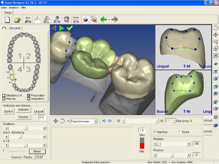 Designsoftware_Modelliersoftware_SmartDesigner_Stege_anbringen_CAD_CAM_Dental_CNC_1
